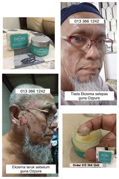 keajaiban minyak zaitun dalam mengubat penyakit kulit ekzema yang teruk